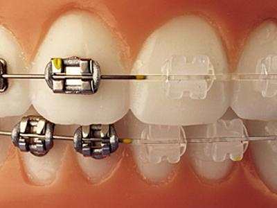 Ortodoncia invisible ¿moda pasajera?
