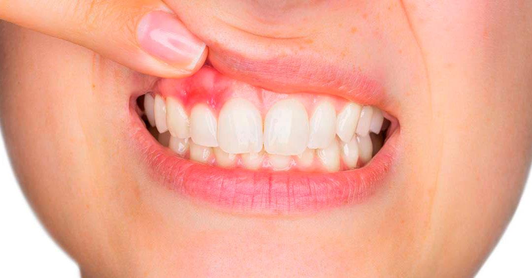 La periodontitis o enfermedad de las encías