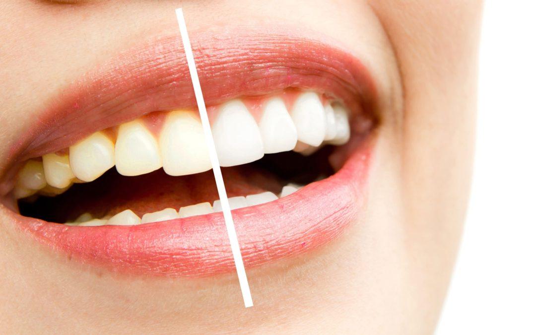 Essentials for the Esthetic Dentist