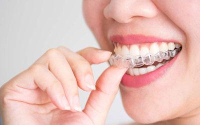 Cuidados durante y tras el tratamiento con ortodoncia